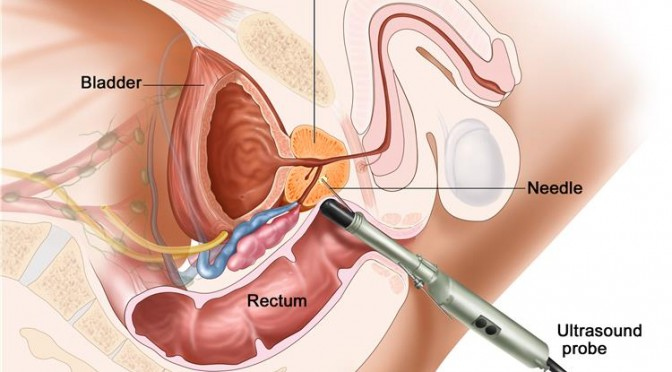 What To Expect After Your Prostate Biopsy Prostate Biopsy